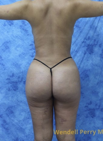 18-24 year old woman treated with Brazilian Butt Lift after 3341030