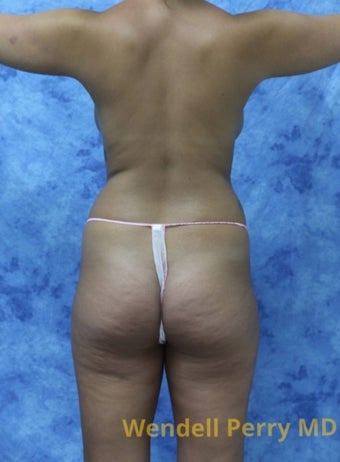 18-24 year old woman treated with Brazilian Butt Lift before 3341030
