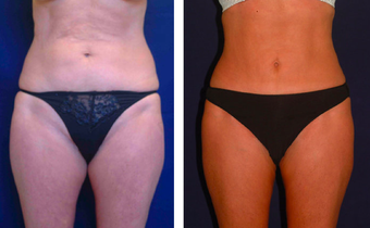 Tummy Tuck / Abdominoplasty   before 283260