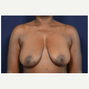 35-44 year old woman treated with Breast Lift before 3246064
