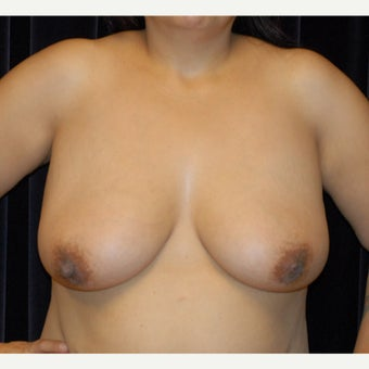 Breast reduction and lift before 2078756