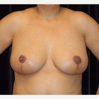 Breast reduction and lift after 2078756