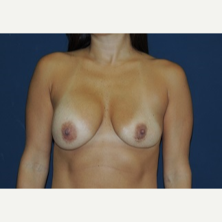 25-34 year old woman treated with Breast Lift with Implants before 3344029
