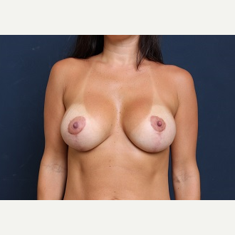 25-34 year old woman treated with Breast Lift with Implants after 3344029