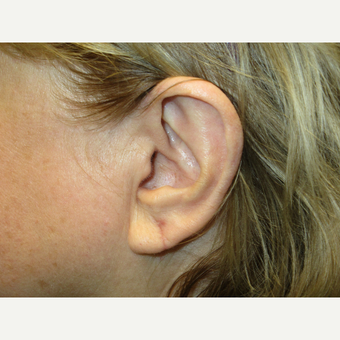 65-74 year old woman treated with Ear Lobe Surgery after 3725523