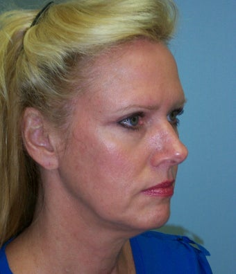 52 year-old woman who underwent facelift and necklift is seen before and one year afte surgery 1120807