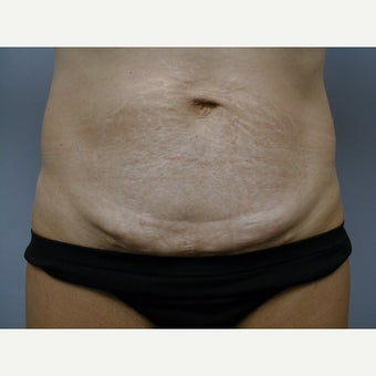 45-54 year old woman treated with Mini Tummy Tuck before 2256393