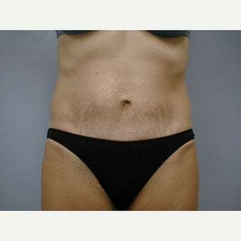 45-54 year old woman treated with Mini Tummy Tuck after 2256393