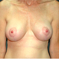 50 year old woman treated with Breast Lift with Implants after 3665899