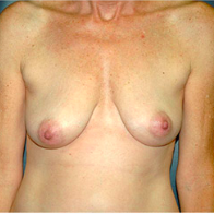 50 year old woman treated with Breast Lift with Implants before 3665899