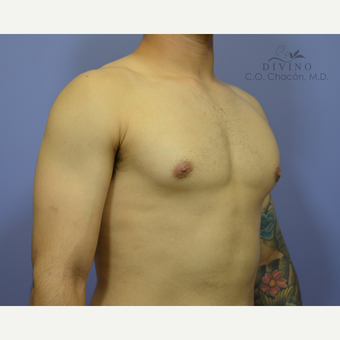 18-24 year old man treated with Male Breast Reduction after 3391760