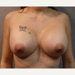 25-34 year old woman treated with Breast Implants after 3108103