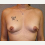 25-34 year old woman treated with Breast Implants before 3108103