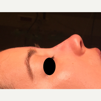 25-34 year old woman treated with Rhinoplasty after 3211317