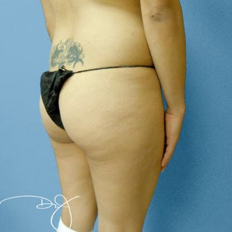 Butt Augmentation 877694