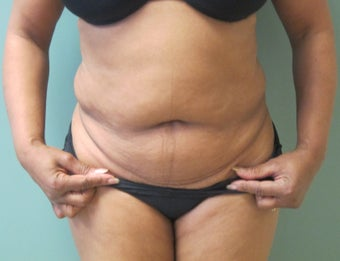 53 Year Old Female- Tummy Tuck with Liposuction of Hips and Flanks before 1046802