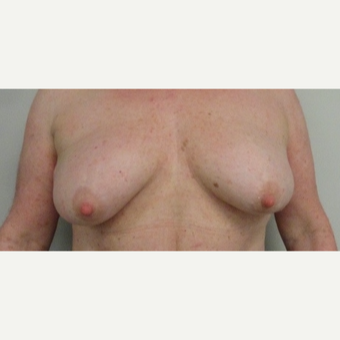 55-64 year old woman treated with Breast Implants before 3205750