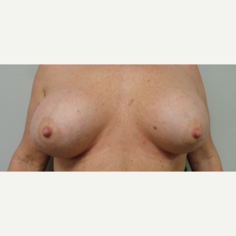 55-64 year old woman treated with Breast Implants after 3205750