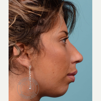 25-34 year old woman treated with Rhinoplasty and chin implant before 3092495
