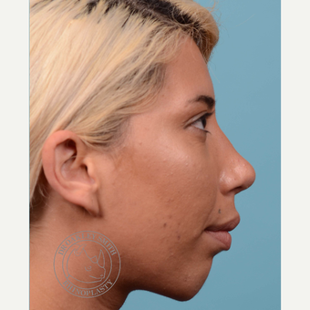 25-34 year old woman treated with Rhinoplasty and chin implant after 3092495