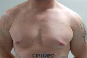 Ginecomastia Waterjet assisted liposuction  supplemented with fat transfer to the upper part of the before 3025055