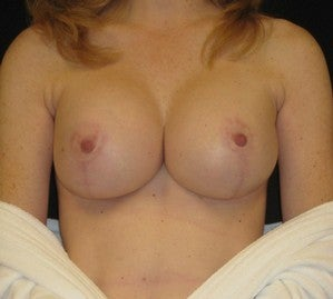 Female Breast Augmentation with Lift after 1254392