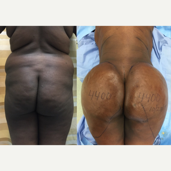 25-34 year old woman has Brazilian Butt Lift before 2256195