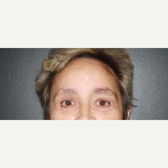 65-74 year old woman treated with Brow Lift after 3033713