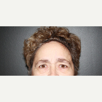 65-74 year old woman treated with Brow Lift before 3033713