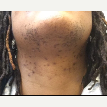 25-34 year old woman treated with Laser Hair Removal