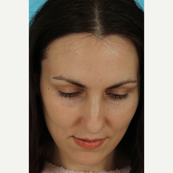 25-34 year old woman treated with Rhinoplasty before 3690823