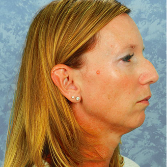 Chin Surgery before 3124436