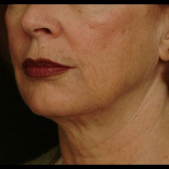 55-64 year old woman treated for Liquid Facelift after 1479661