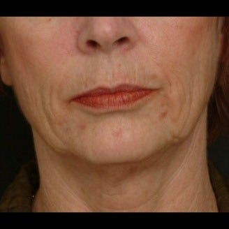 55-64 year old woman treated for Liquid Facelift 1479661
