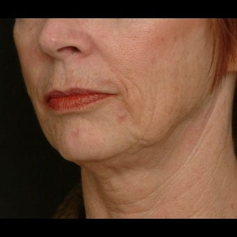 55-64 year old woman treated for Liquid Facelift before 1479661