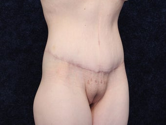 31 Year Old woman After Massive Weight Loss