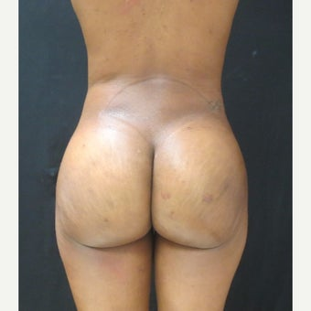 25-34 year old woman treated with Brazilian Butt Lift after 2043216