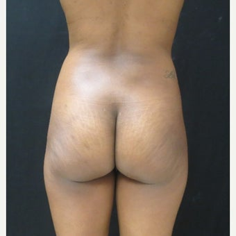 25-34 year old woman treated with Brazilian Butt Lift before 2043216