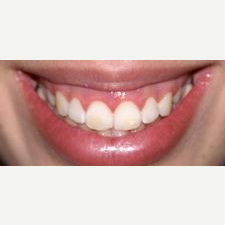 25-34 year old woman treated with Lip Lowering before 3027709