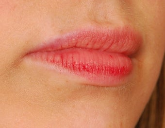 Restylane Lip Augmentation  492296