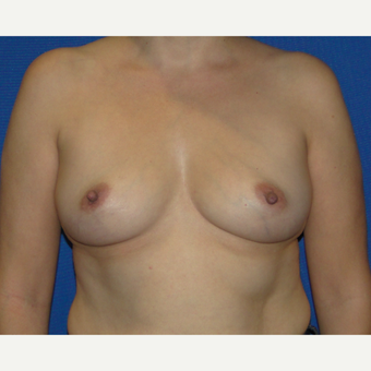 35-44 year old woman treated with Breast Augmentation before 3537359