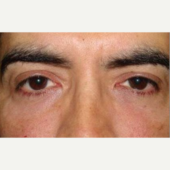 35-44 year old man treated with Restylane after 2060878