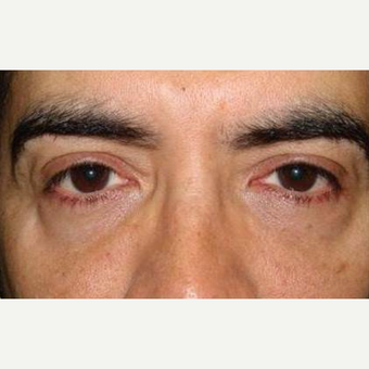 35-44 year old man treated with Restylane before 2060878