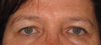 Female Ultherapy for brow lift before 1253096