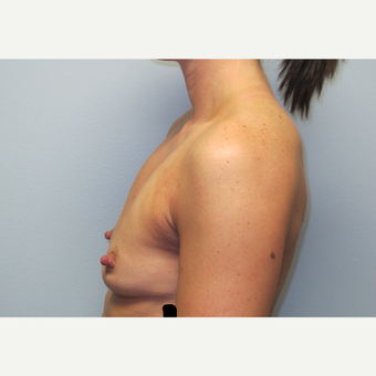 35-44 year old woman treated with Breast Augmentation before 3185782