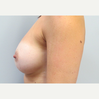 35-44 year old woman treated with Breast Augmentation after 3185782