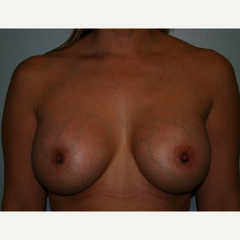 Breast Augmentation after 3561991