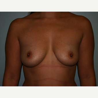 Breast Augmentation before 3561991