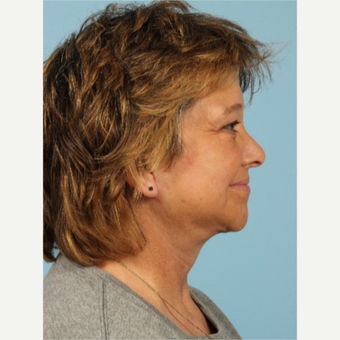 55-64 year old woman treated with Facelift after 3617718