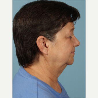 55-64 year old woman treated with Facelift before 3617718